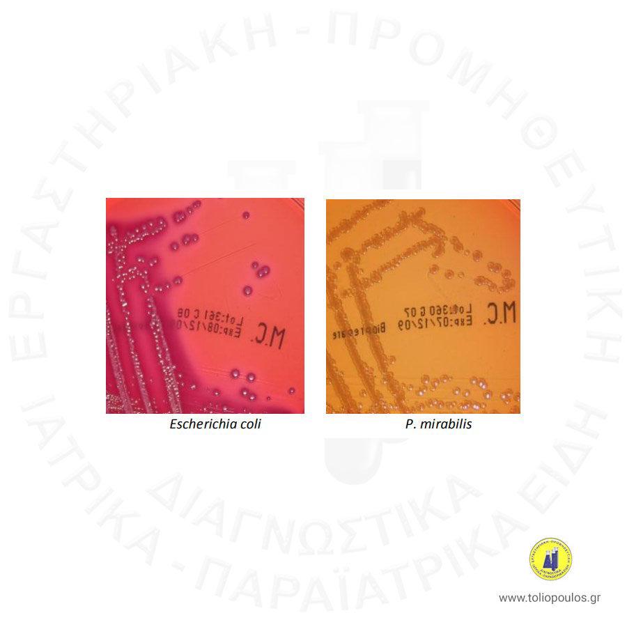 MAC-CONKEY-BIOPREPARE-ΤΟΛΙΟΠΟΥΛΟΣ-ΔΙΑΓΝΩΣΤΙΚΑ